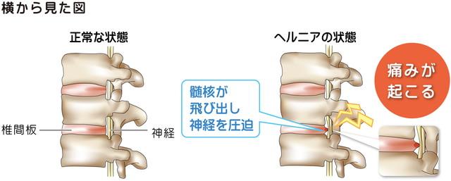 脊柱横から見た図