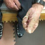 手の痛み、指の痛み、ばね指