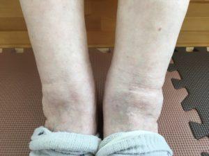 90代お婆ちゃん 脚のむくみ 足の痛み